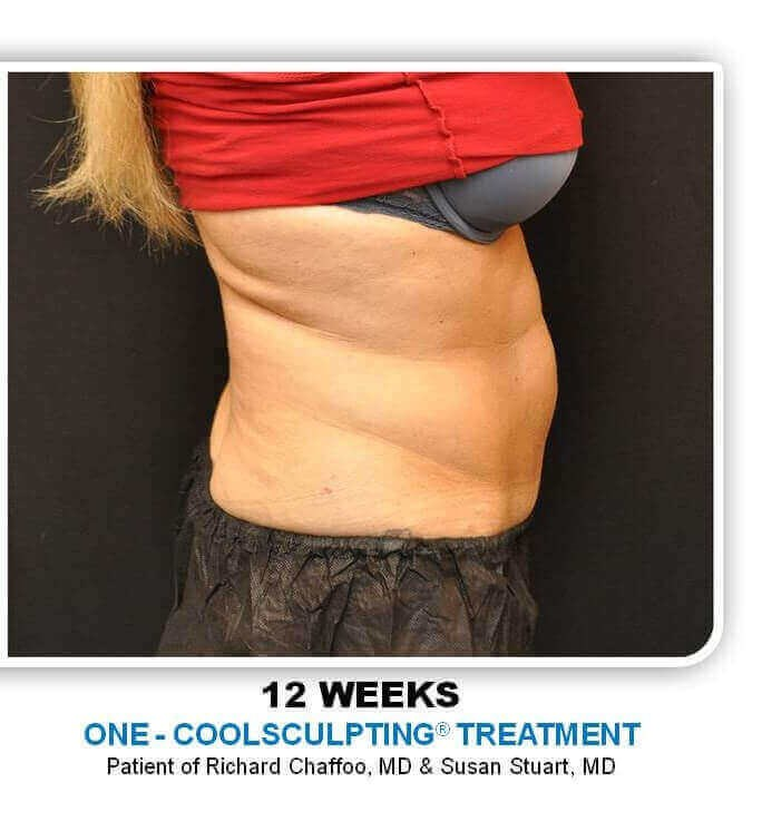 Coolsculpting Sideview After
