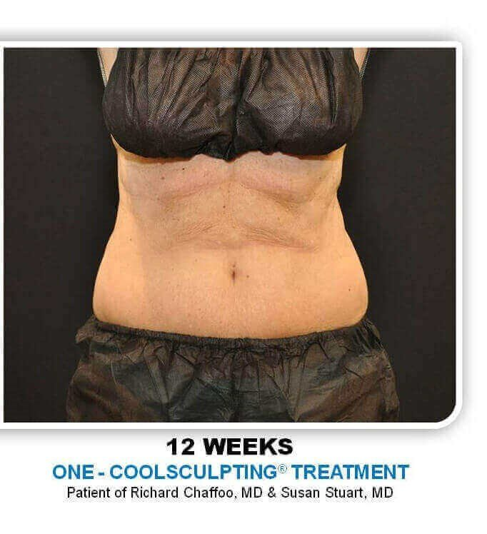 Coolsculpting Abdomen After