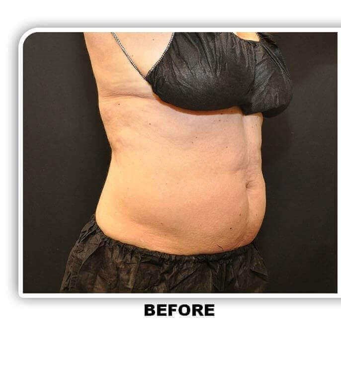 Coolsculpting Side Before