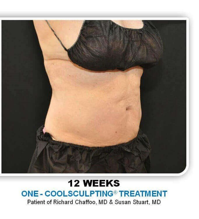 Coolsculpting Side After
