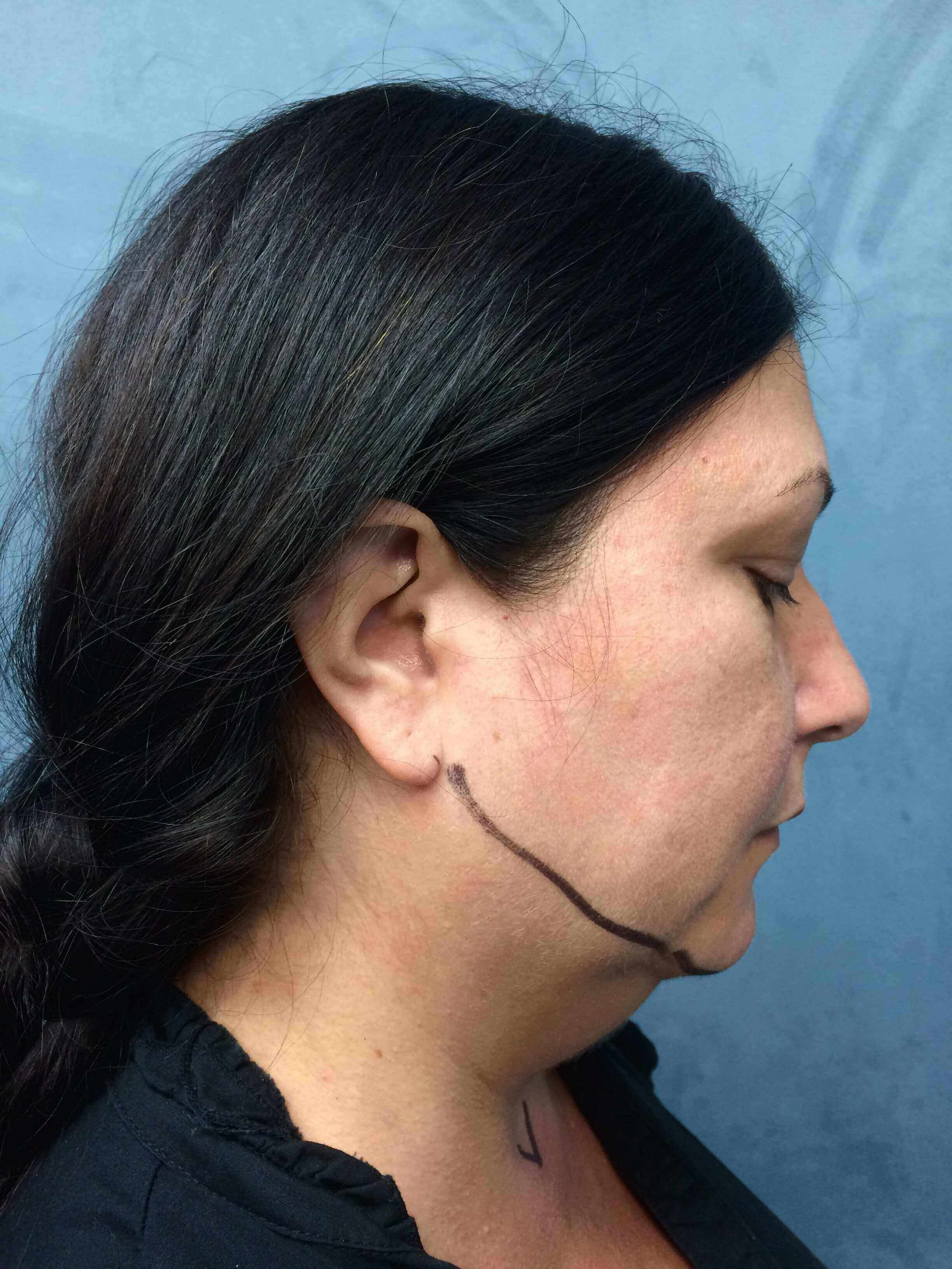 Neck Liposuction & Laser Lift Before
