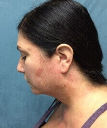 Neck Liposuction & Laser Lift After