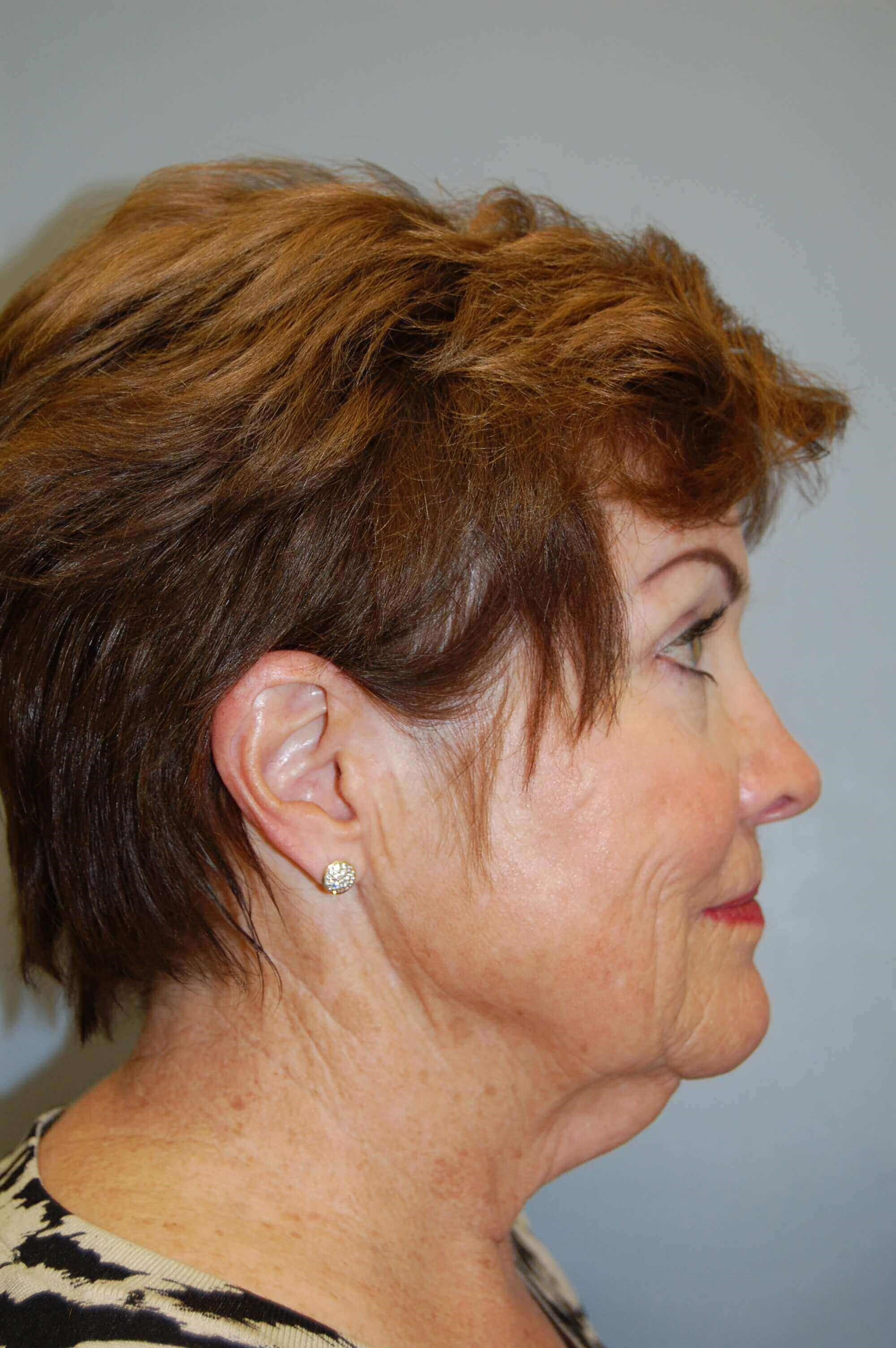 Face & Neck Lift Before