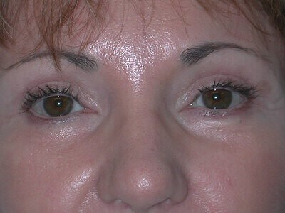 Facelift, Eyelid Surgery After