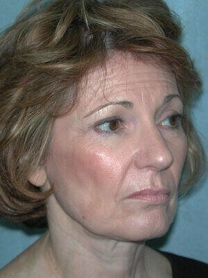 Facelift, Eyelid Surgery Before