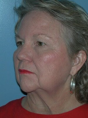 Eyelid Surgery, Facelift Before