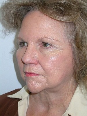 Eyelid Surgery, Facelift After