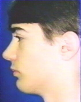 Rhinoplasty, Chin Implant After