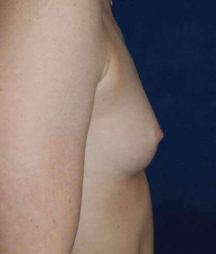 San Diego Breast Augmentation Before