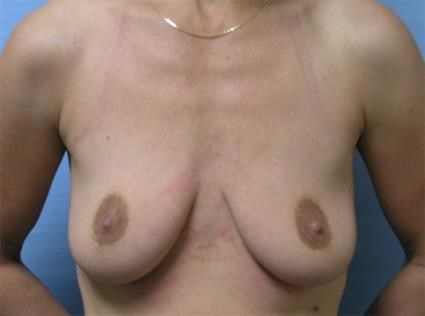 Augmentation with Lift Before
