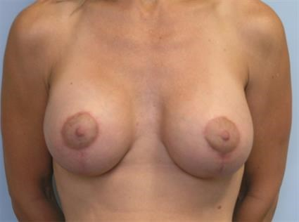 Augmentation with Lift After