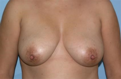 Breast Augmenation with Lift Before