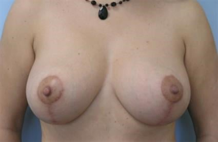 Breast Augmenation with Lift After