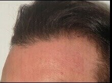 Neograft Hair Restoration After