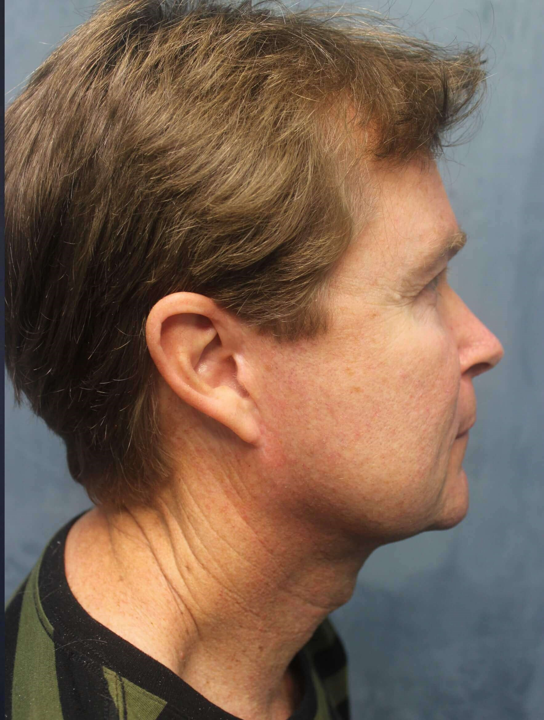 Face & Neck Lift After