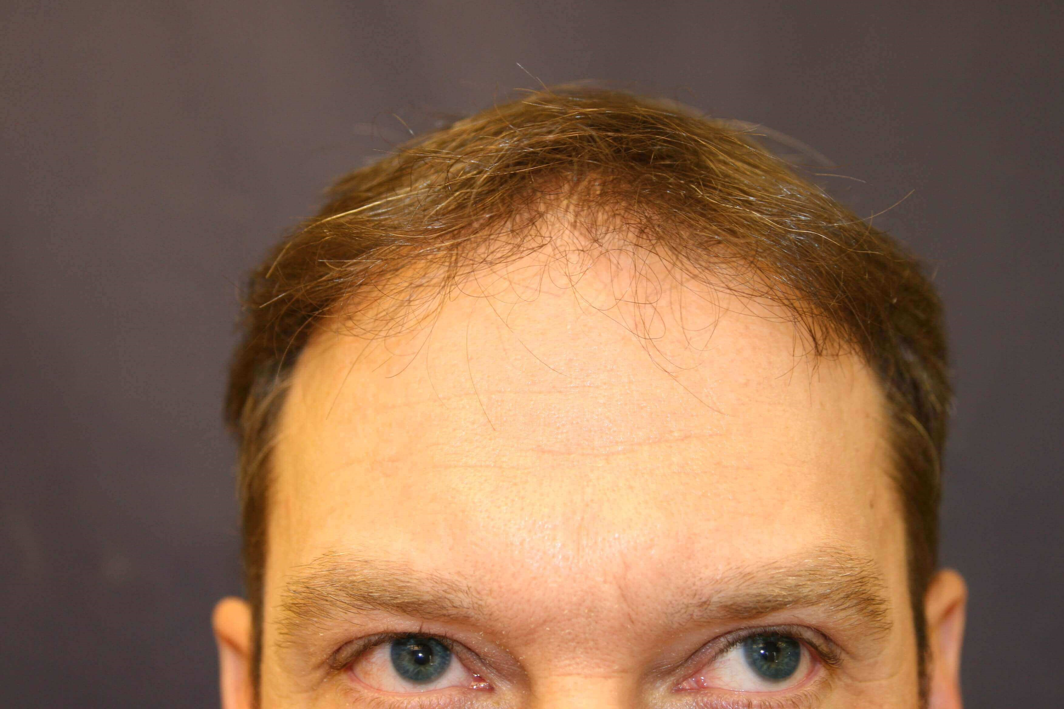 Hair Restoration Surgery Before