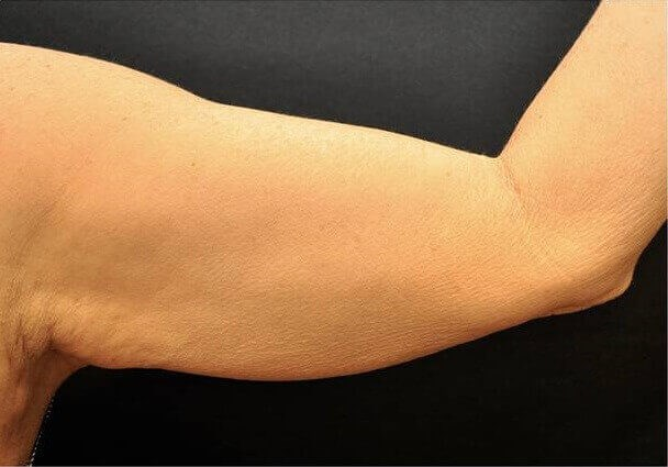 Hispanic Female Inner Arms Before