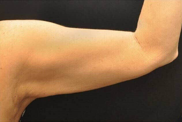 Hispanic Female Inner Arms After