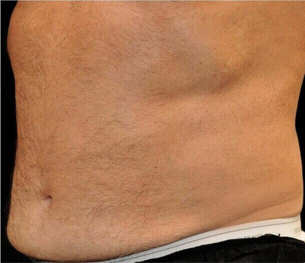 White Male Abdomen After