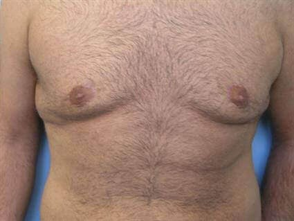 San Diego Gynecomastia Rx After