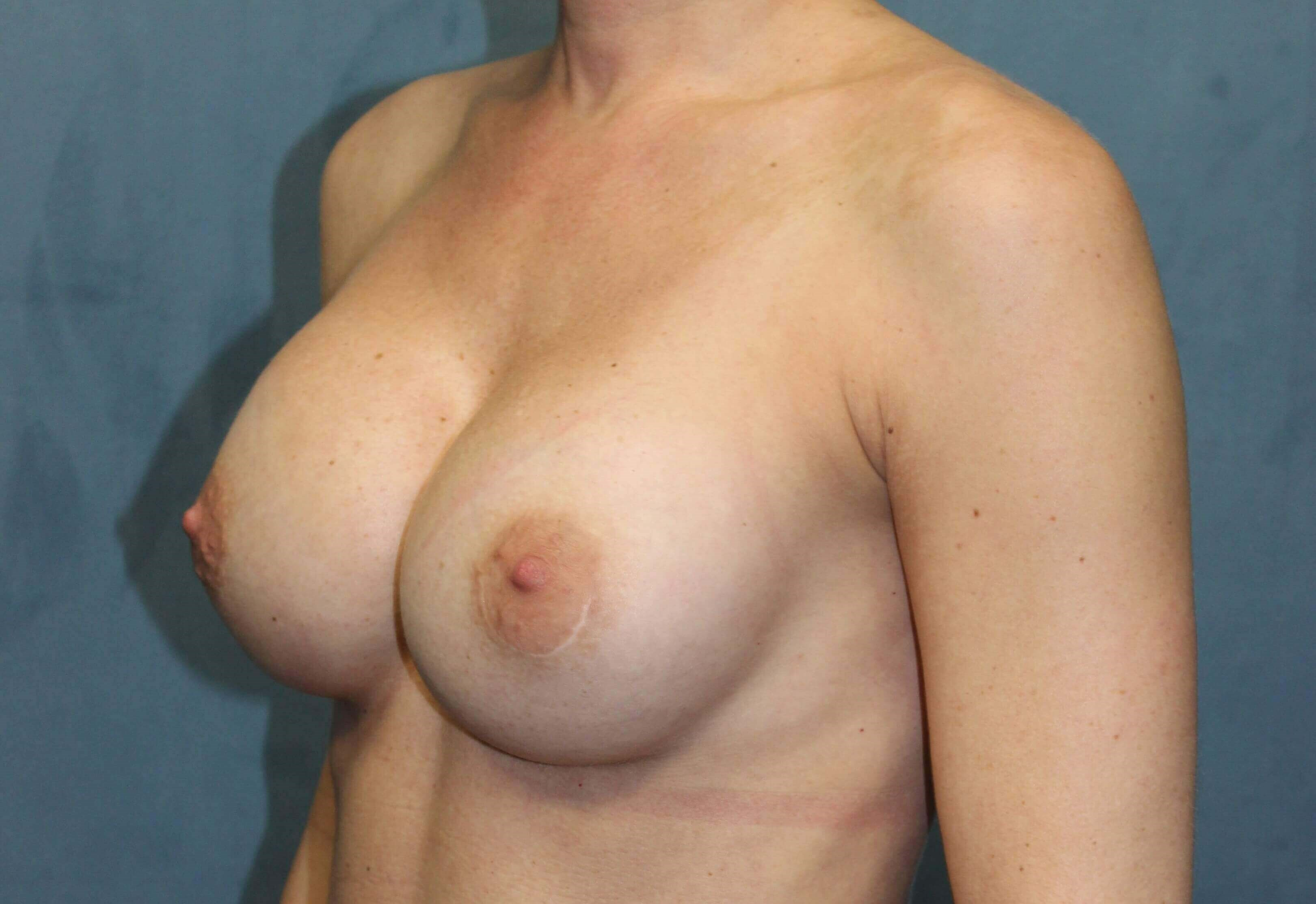 Breast Augmenation Revision Before