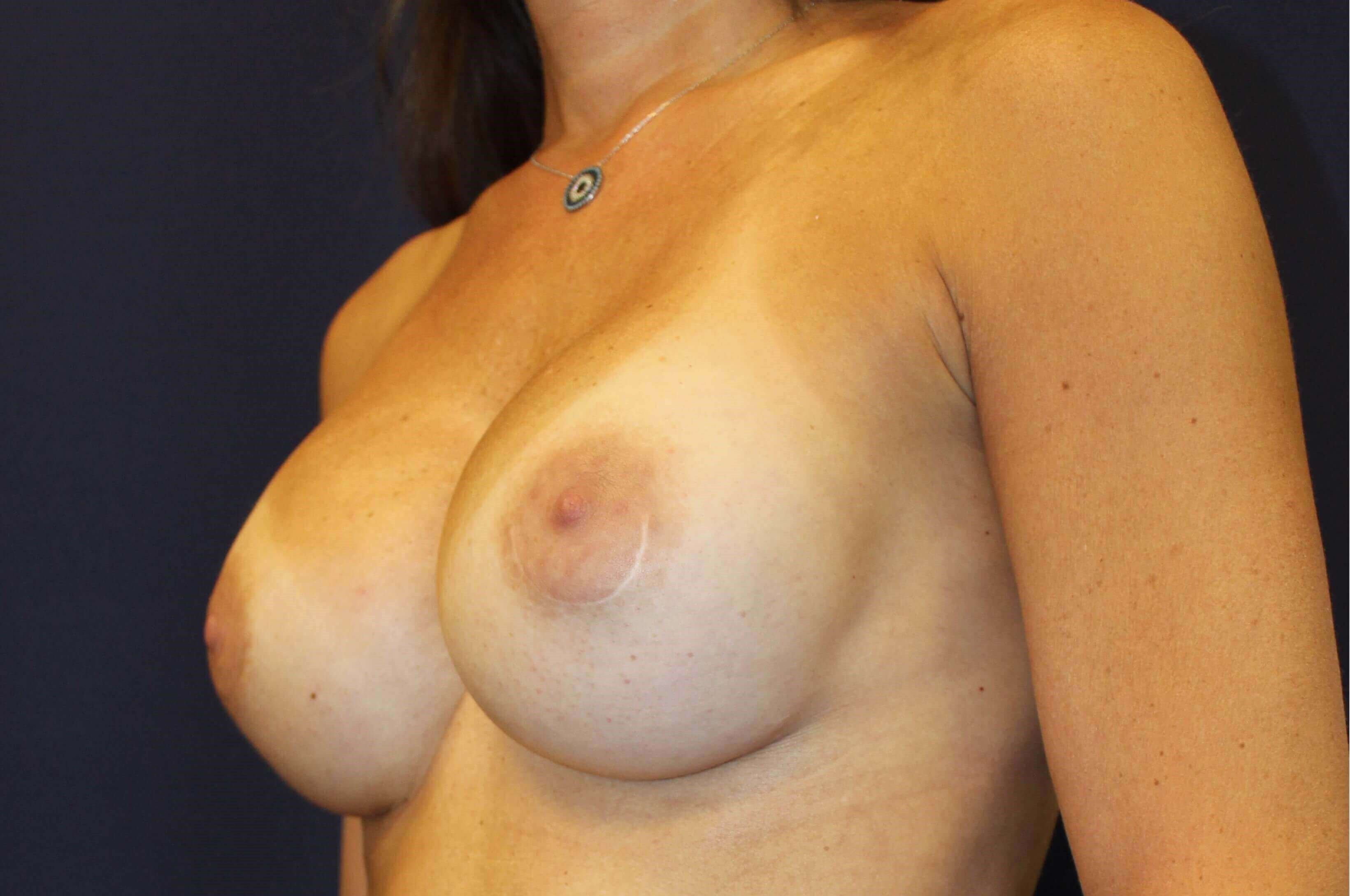 Breast Augmenation Revision After