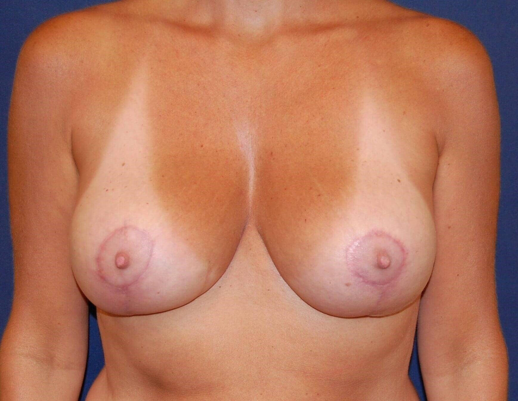 Augmentation & LIft After