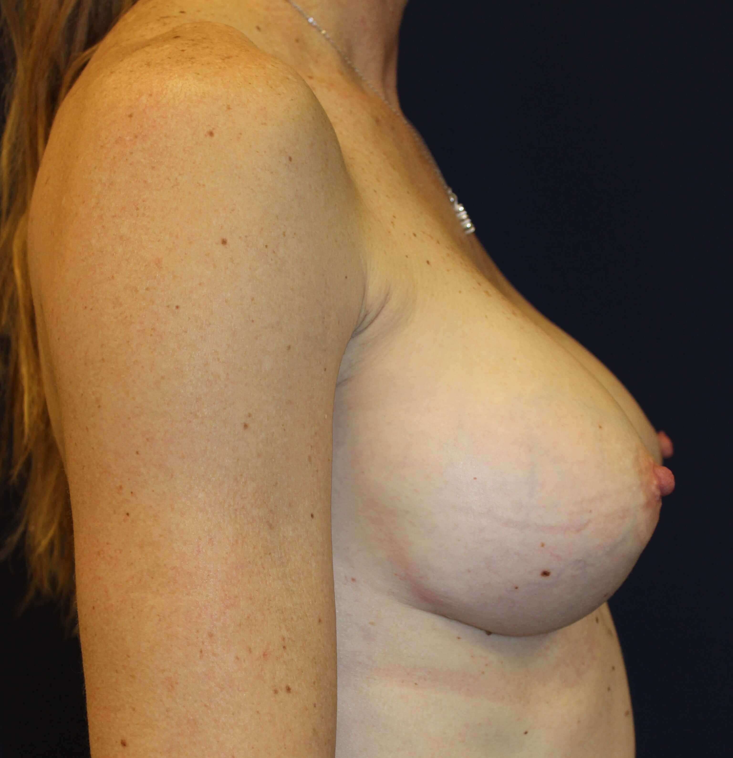 Breast Augmentation Revision After