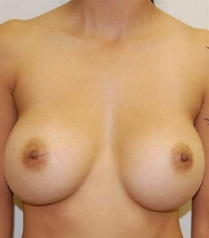 Breast Augmentation Revision Before