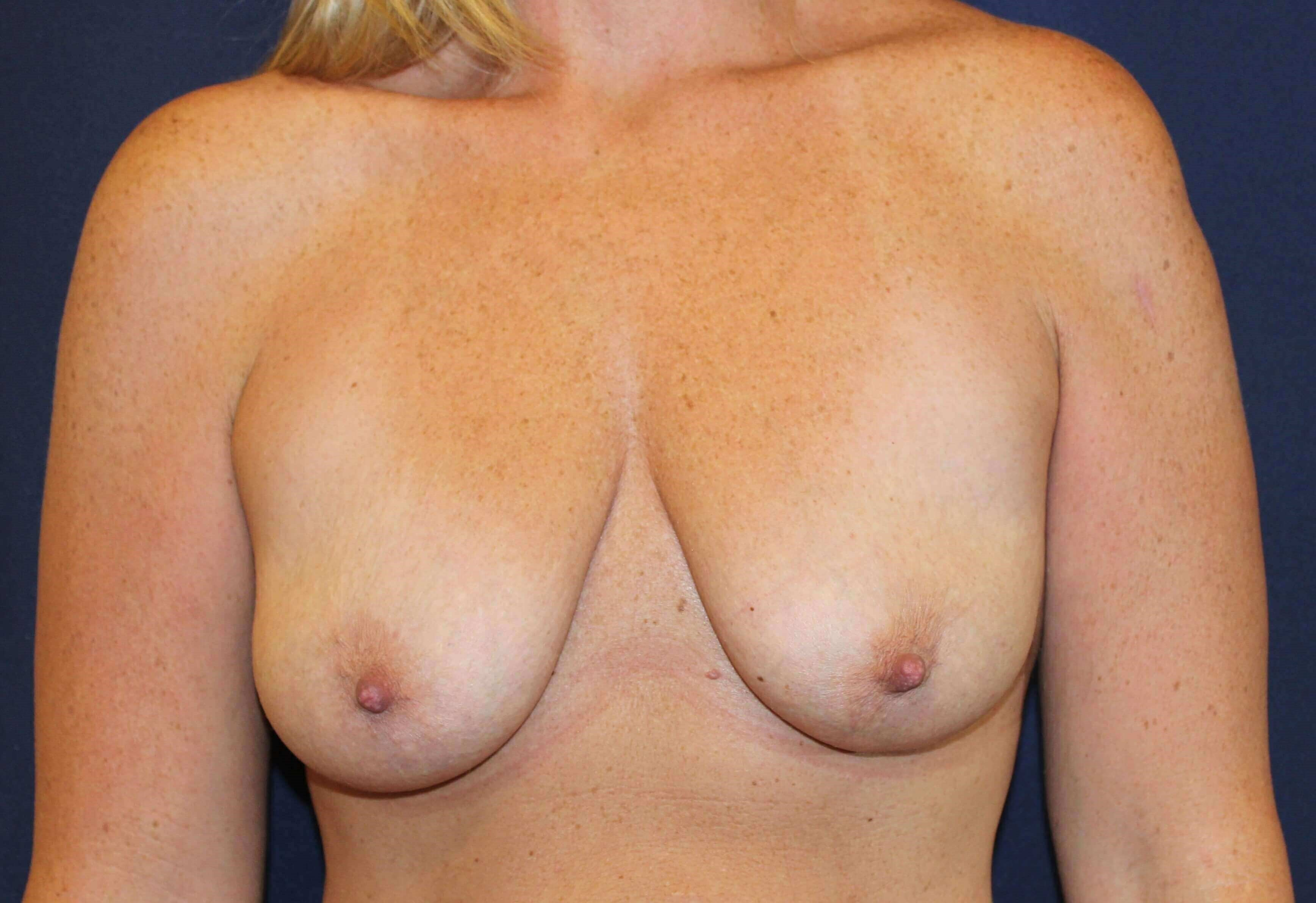 San Diego Breast Aug & Lift Before