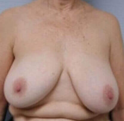 San Diego Breast Reduction Before