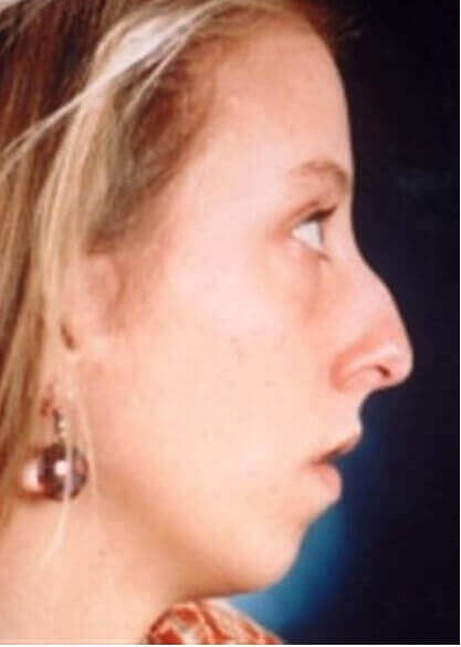 San Diego Rhinoplasty & Chin Before