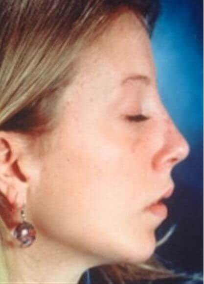 San Diego Rhinoplasty & Chin After