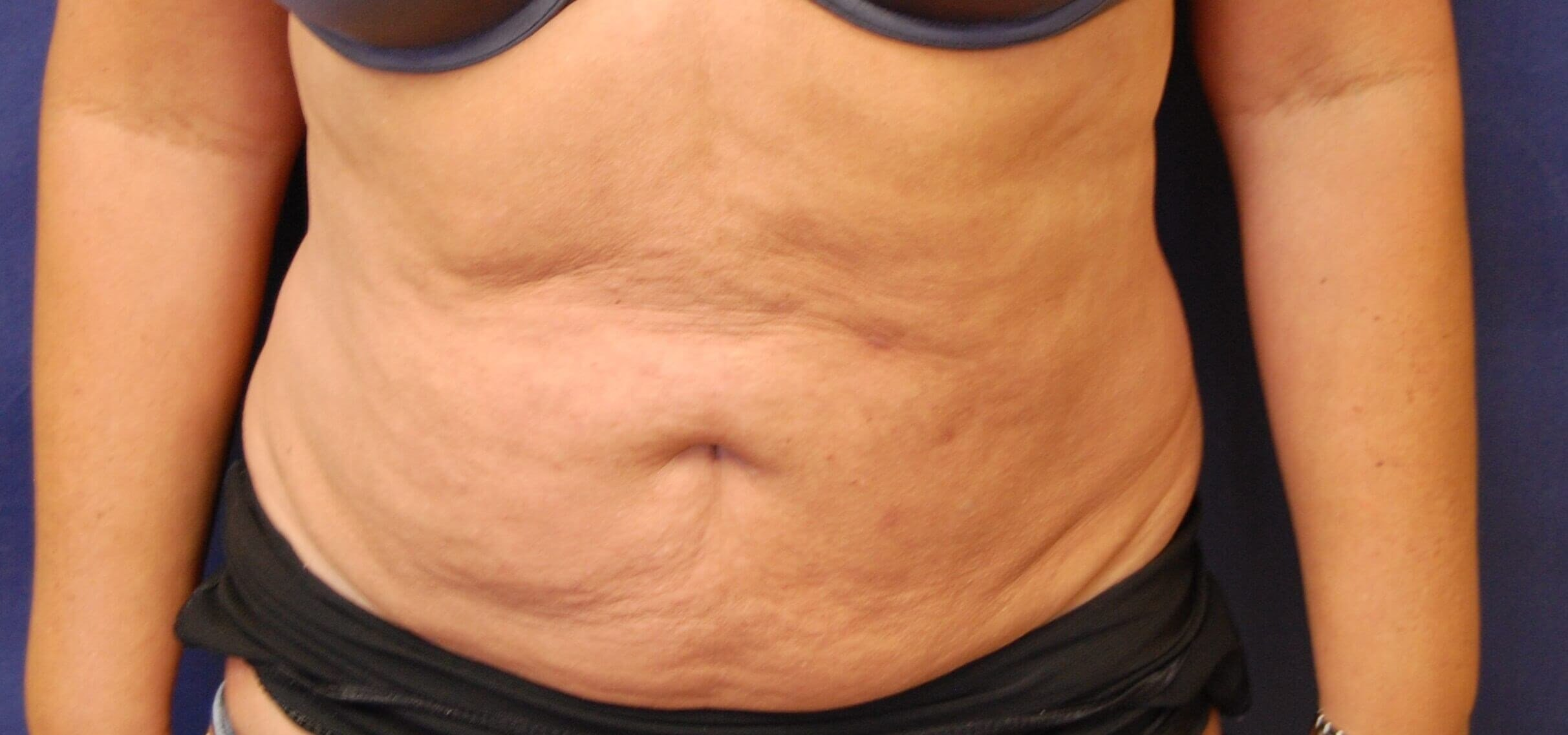 Lipo Neck & Trunk After