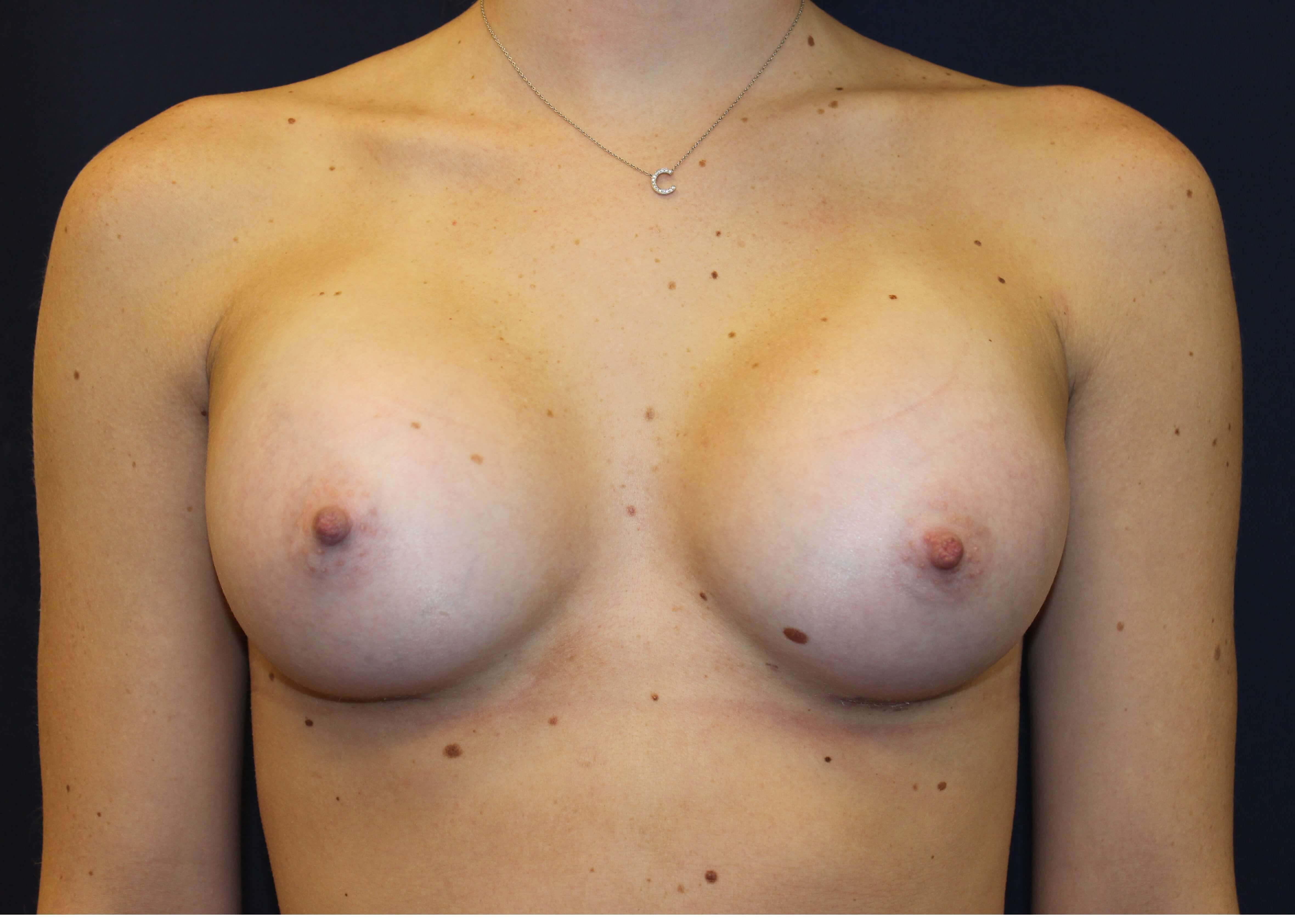 San Diego Breast Augmentation After