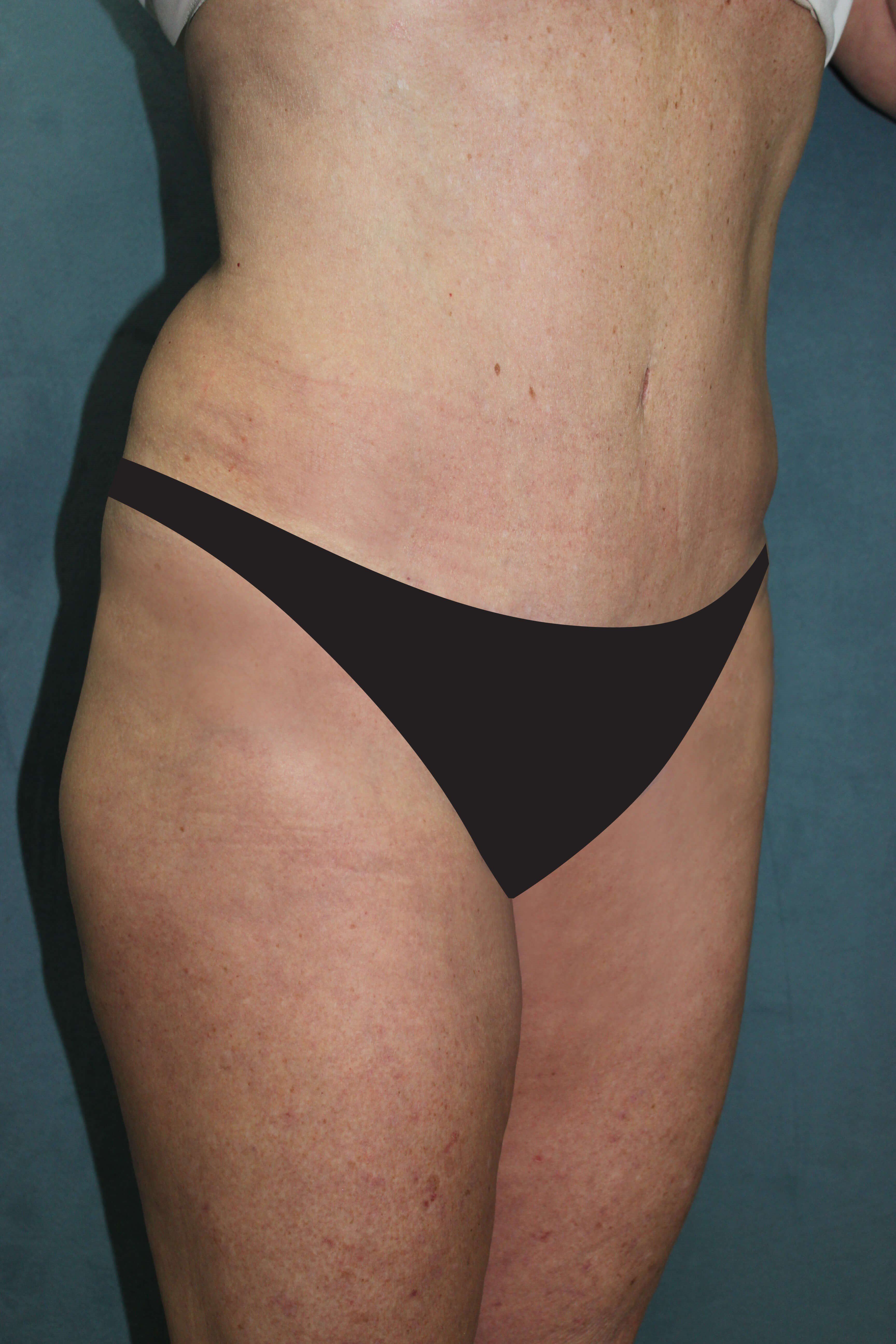 Abdominoplasty & Liposuction After
