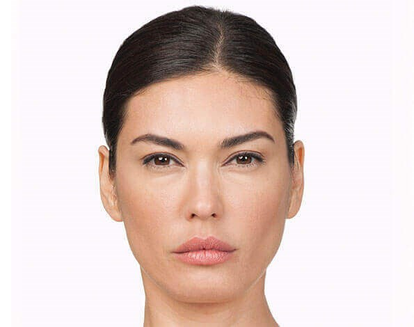 San Diego Botox After