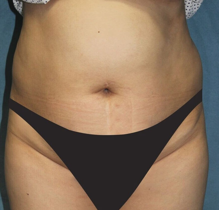 San Diego Tummy Tuck & Lipo Before