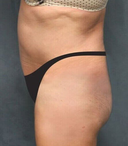 San Diego Tummy Tuck & Lipo After