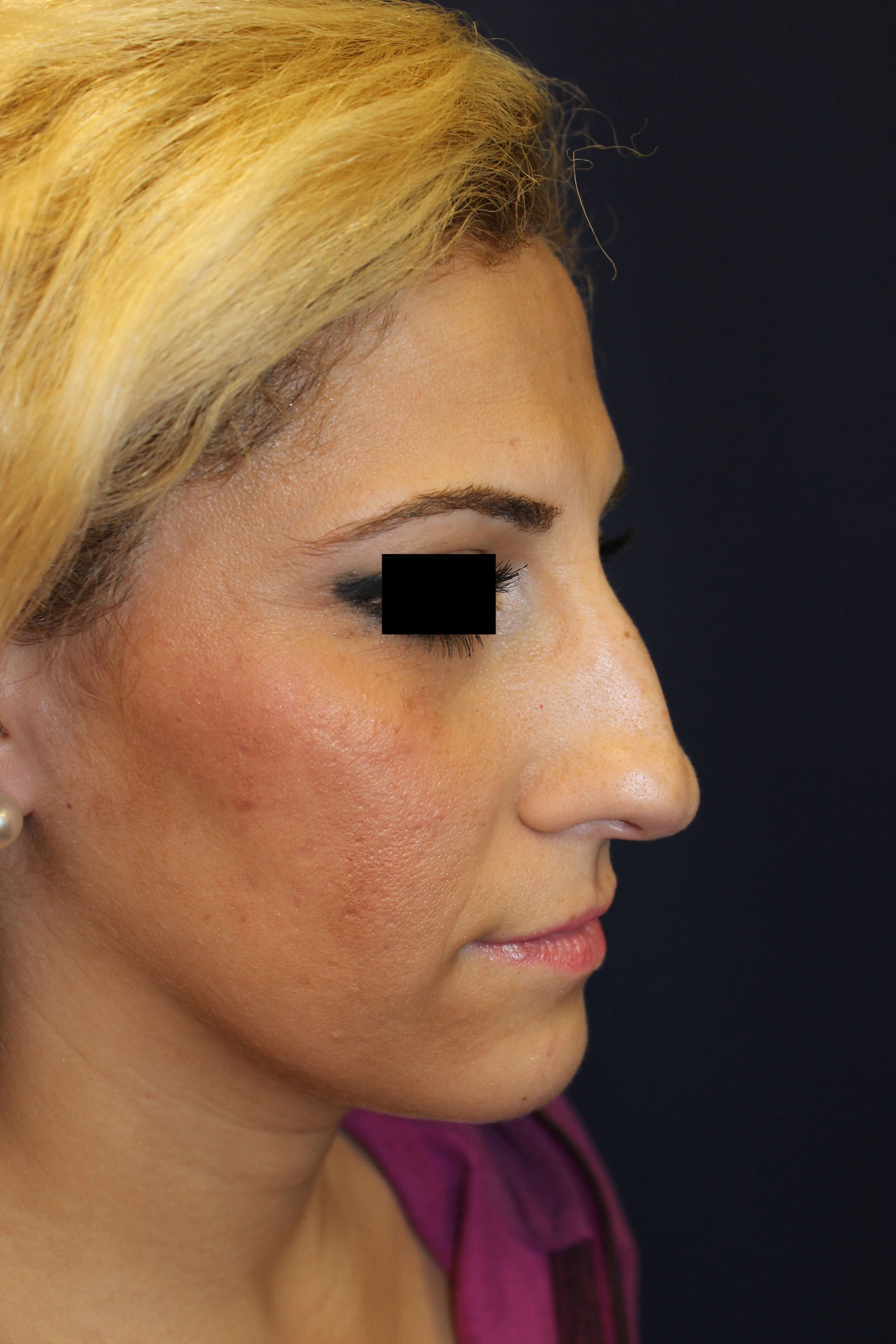 San Diego Rhinoplasty Before