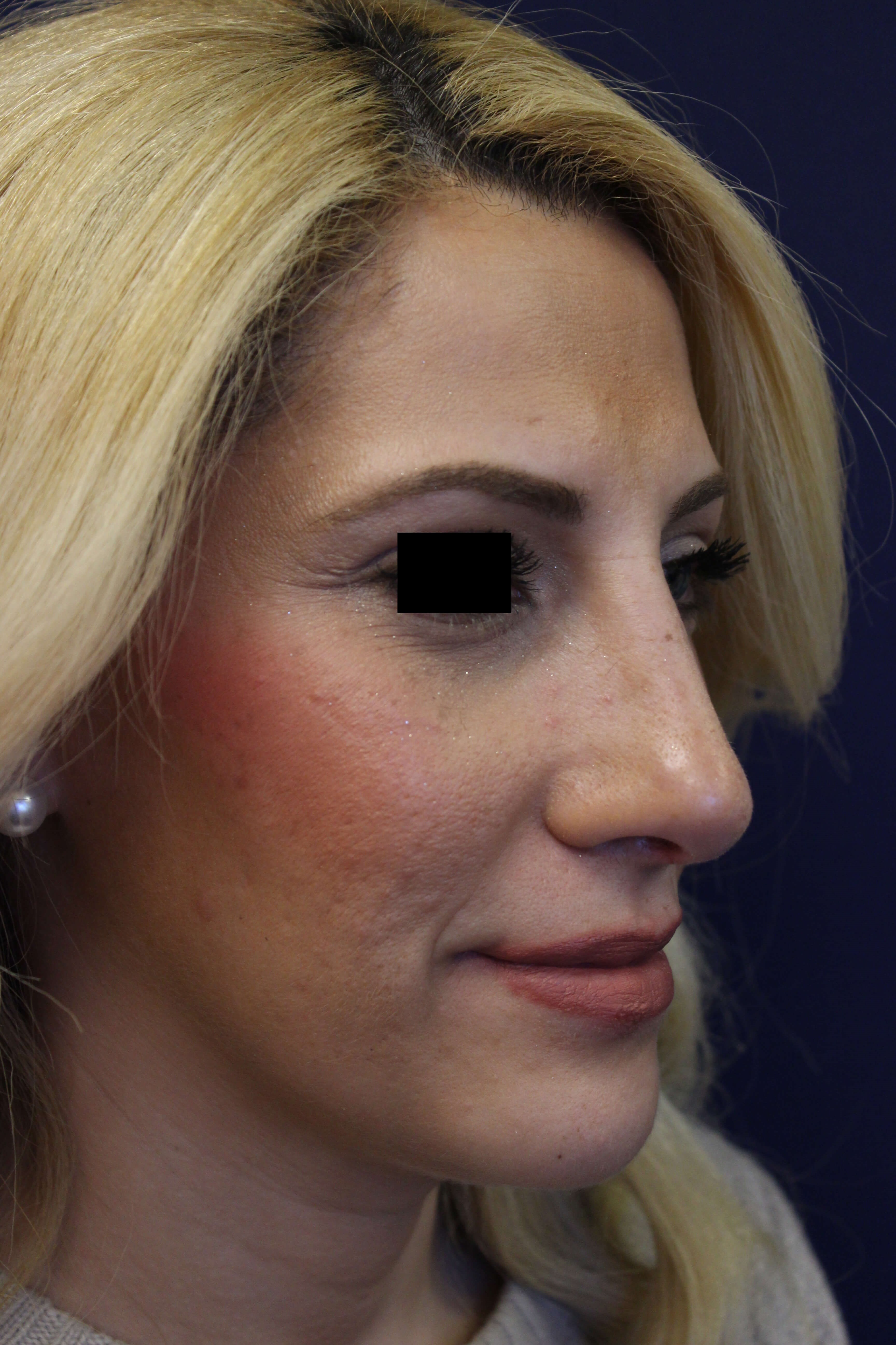 San Diego Rhinoplasty After
