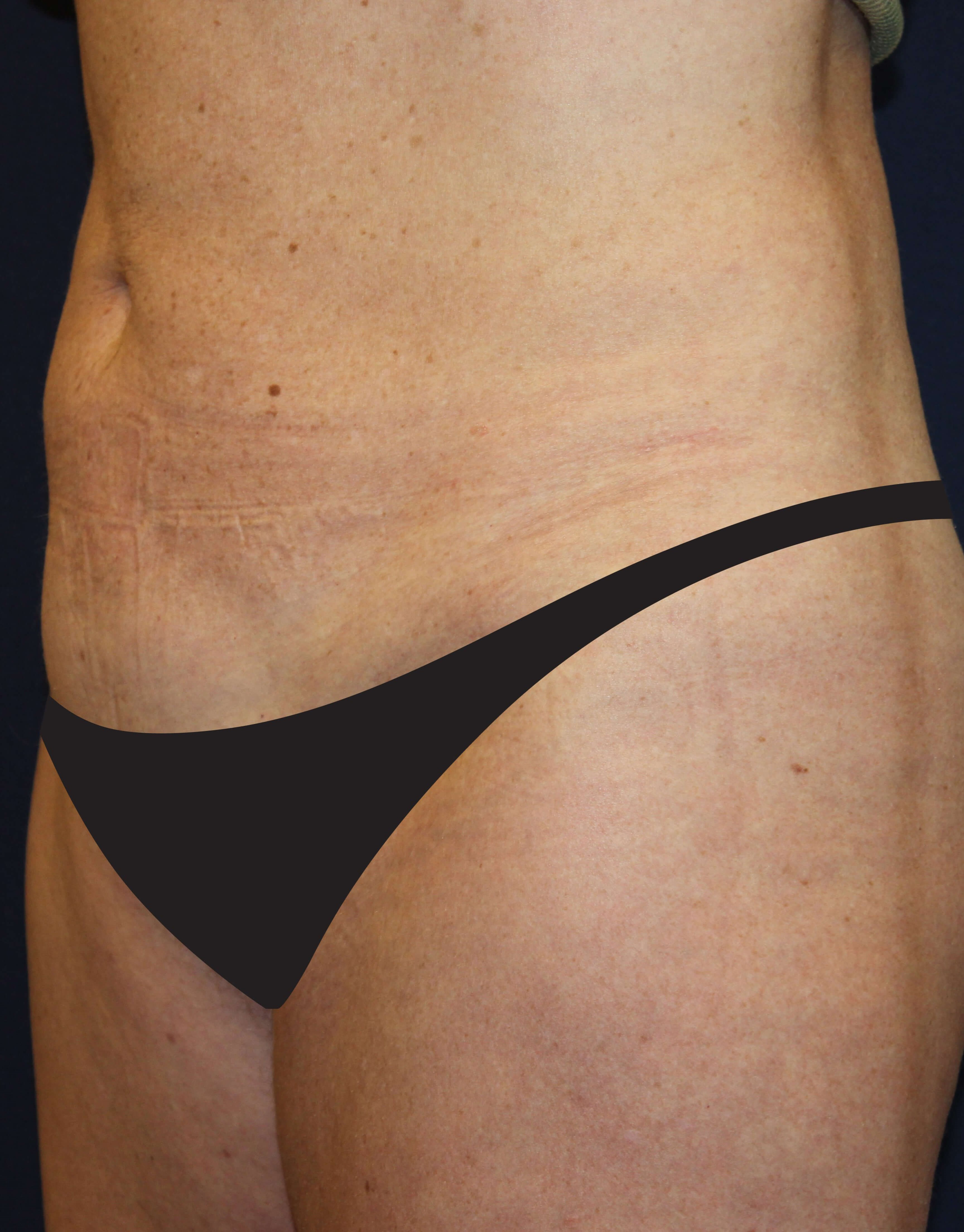 Liposuction Abdomen & Flanks After