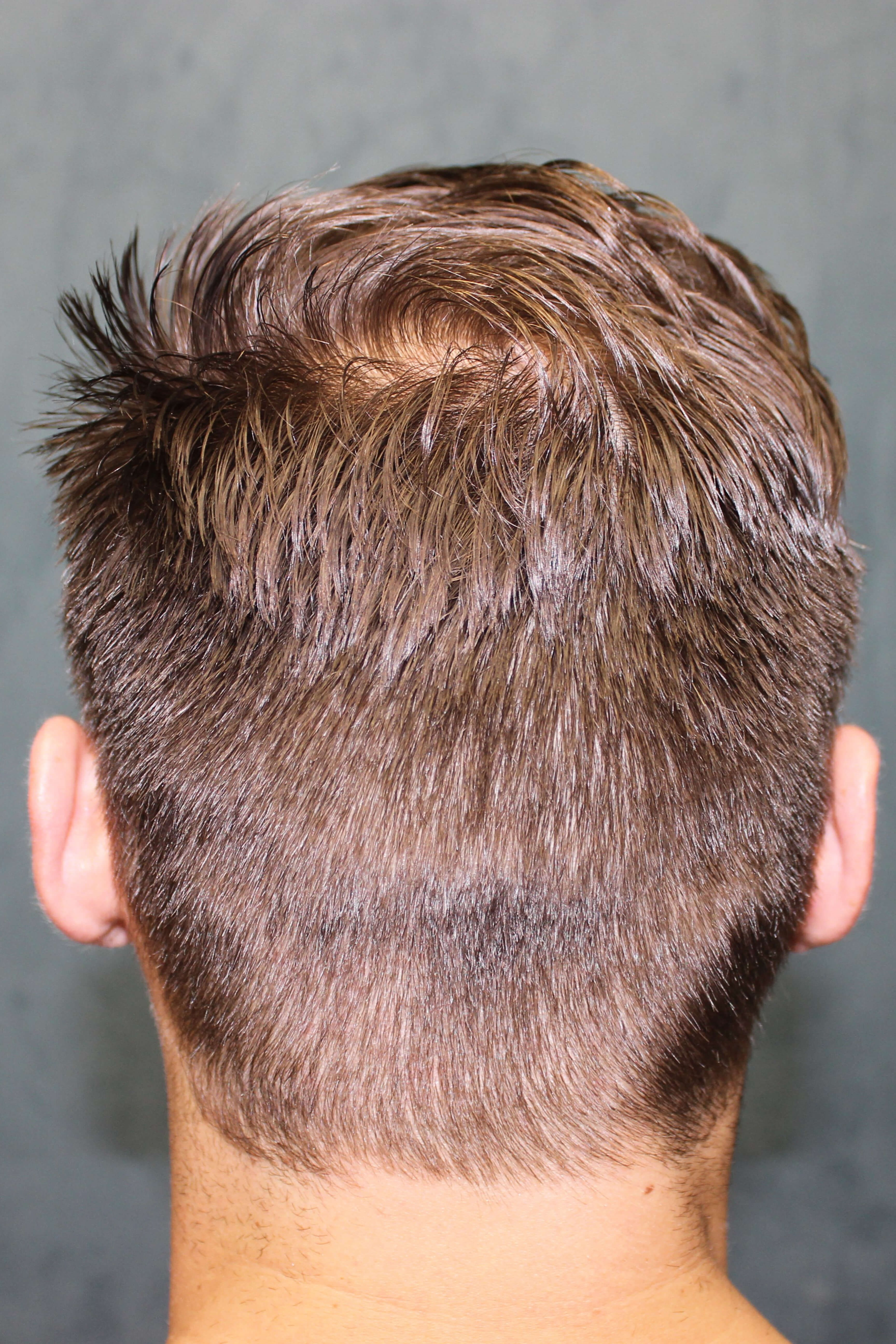 Hair Restoration Surgery After