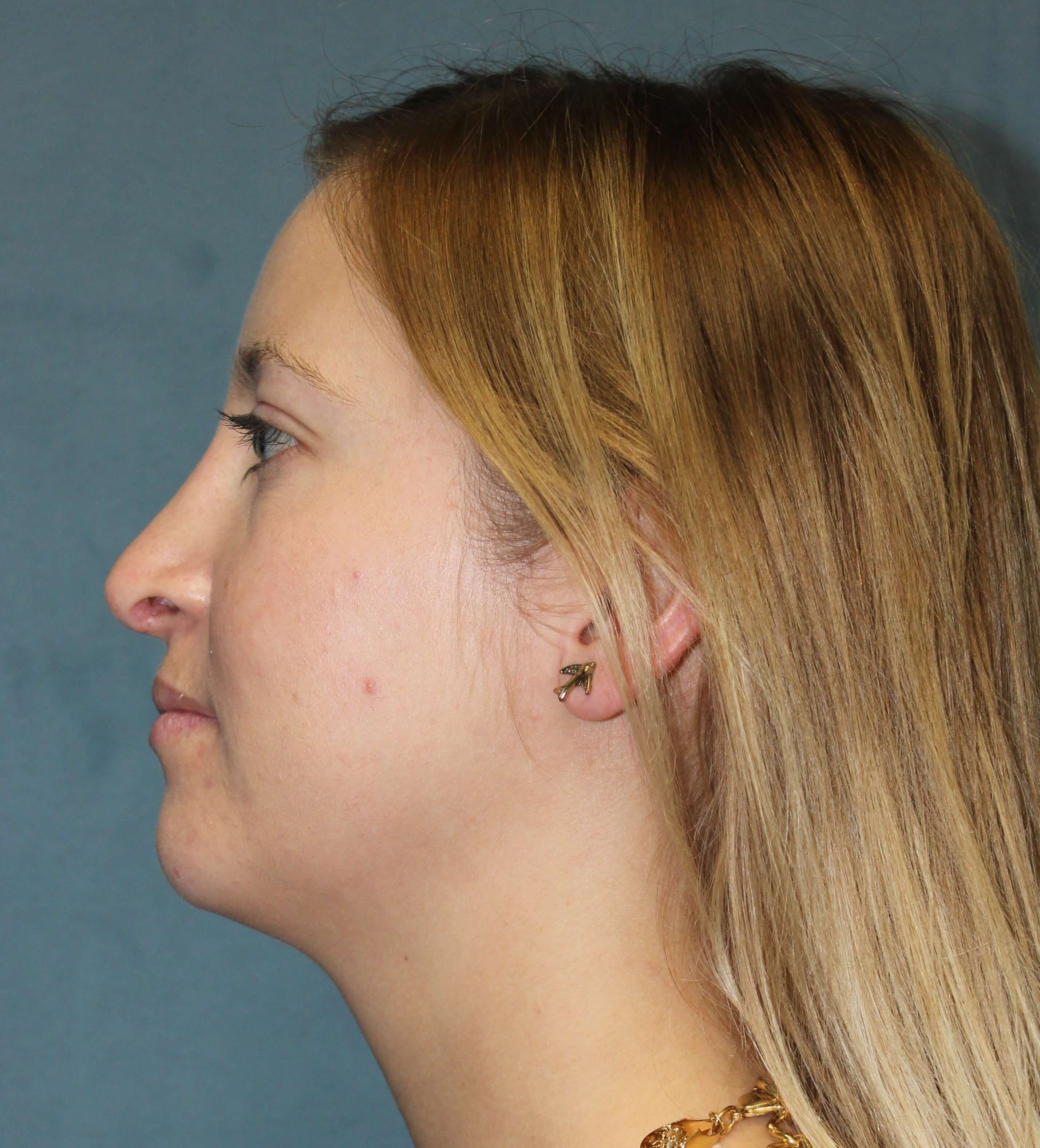 San Diego Breast & Nose Surg After