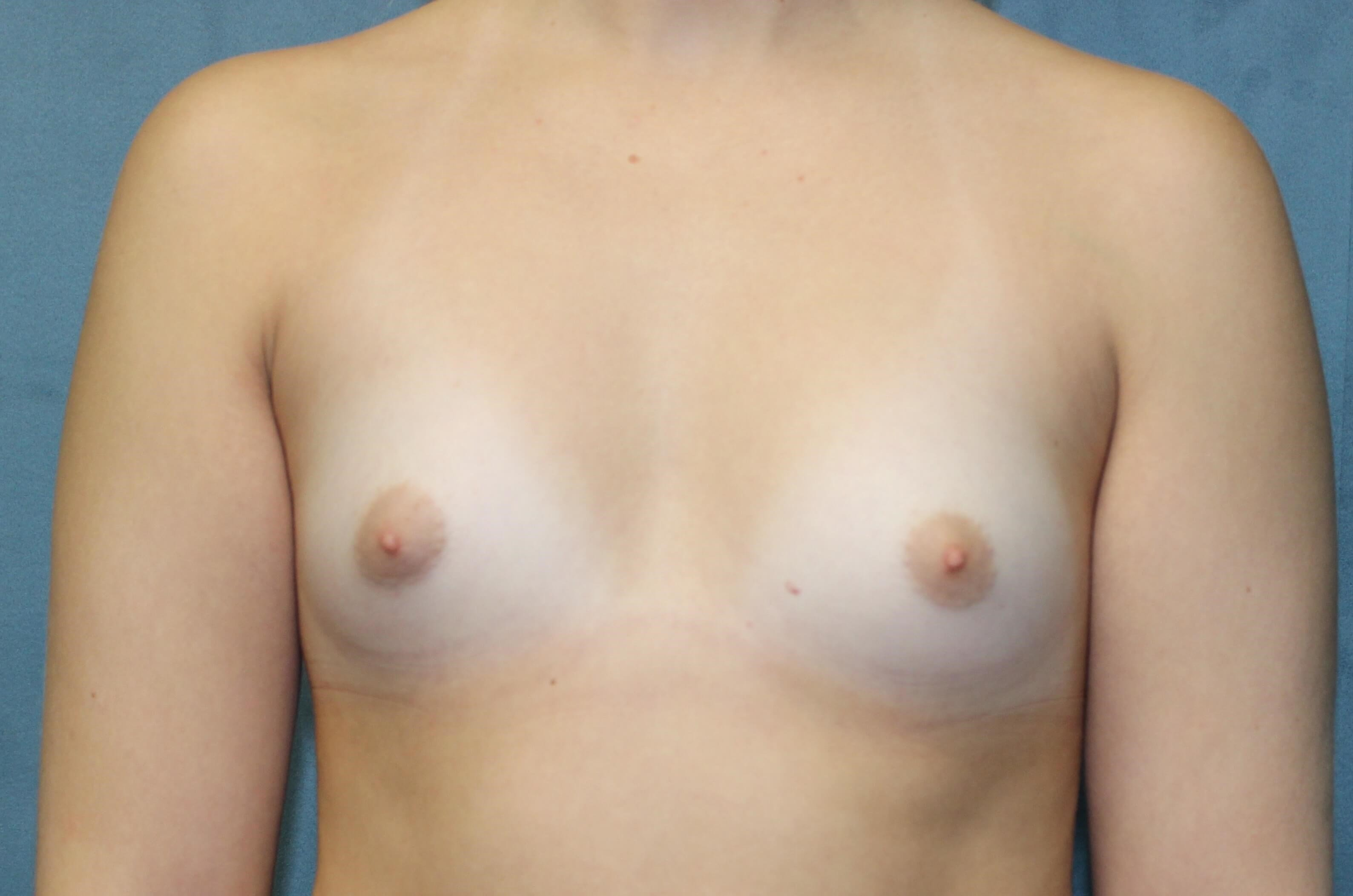 San Diego Breast & Nose Surg Before