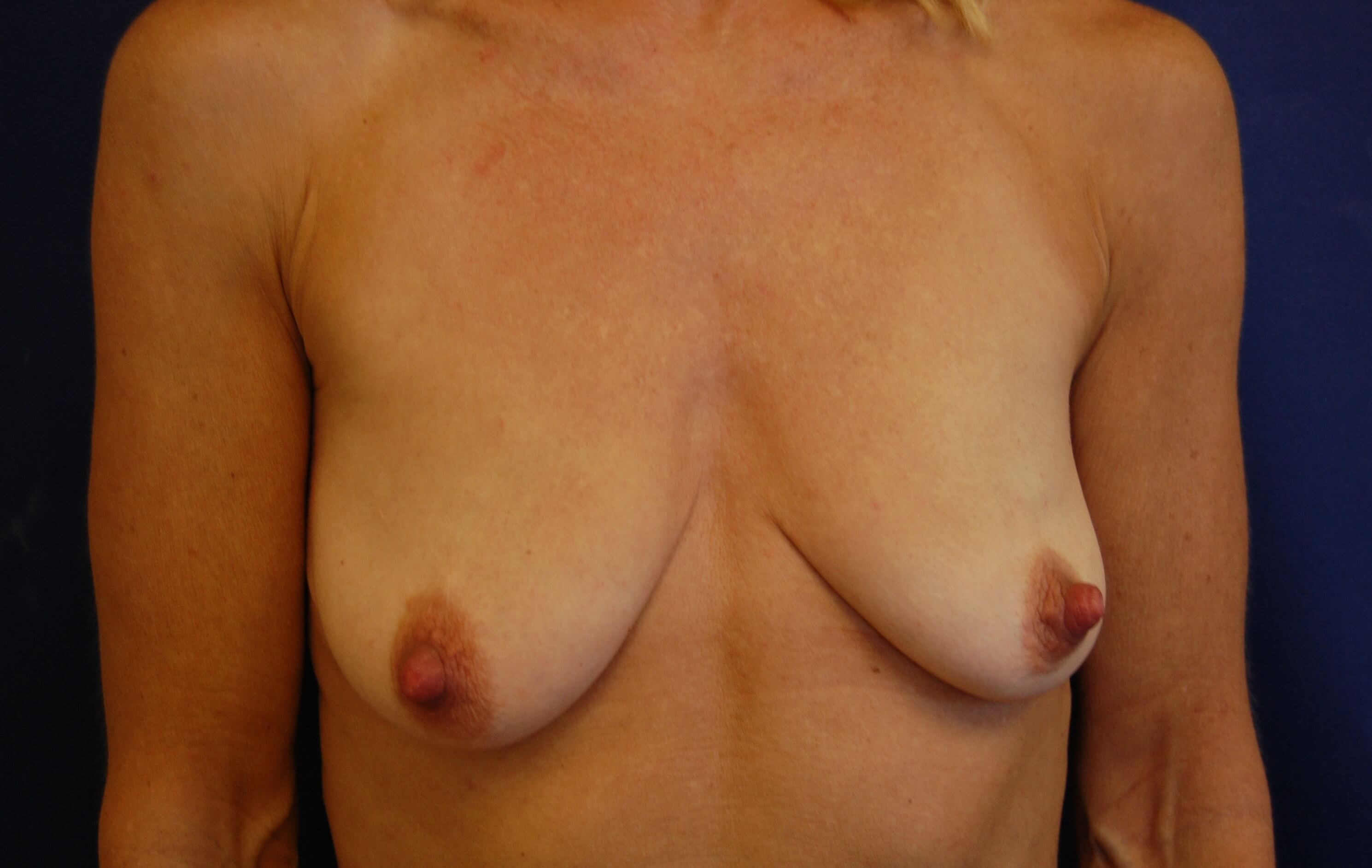 San Diego Breast Lift & Aug Before