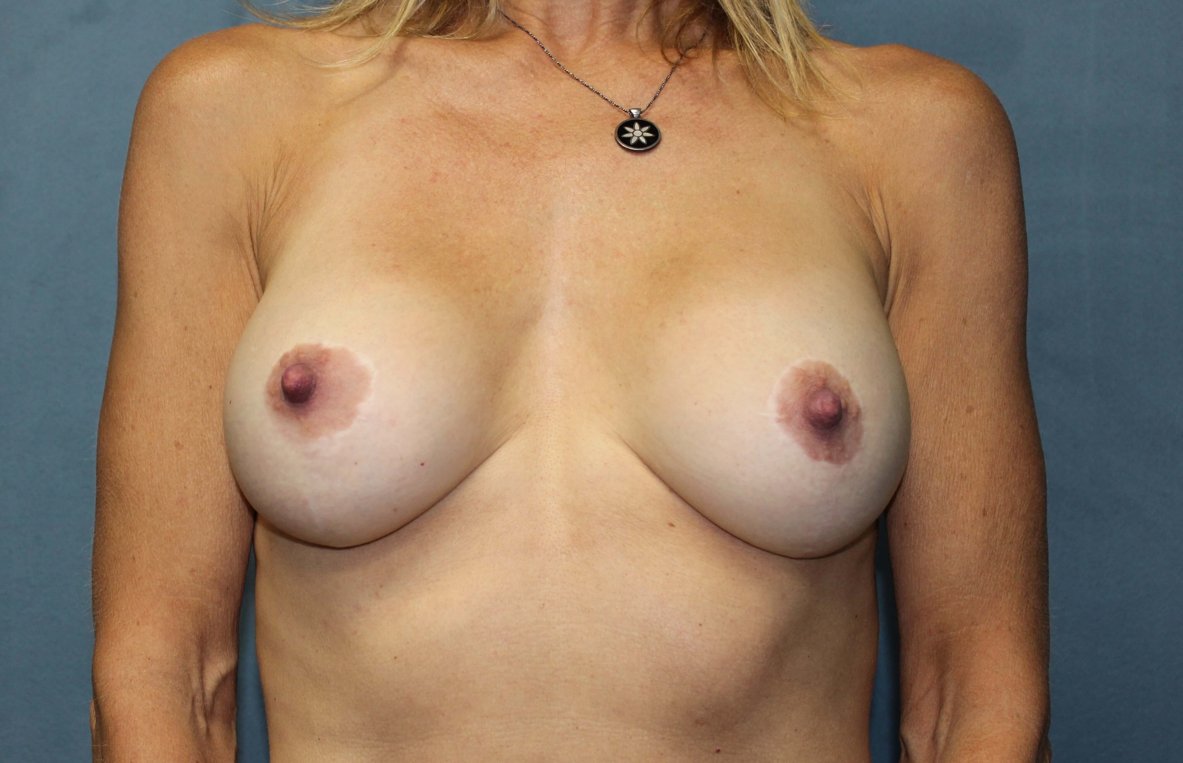 San Diego Breast Lift & Aug After