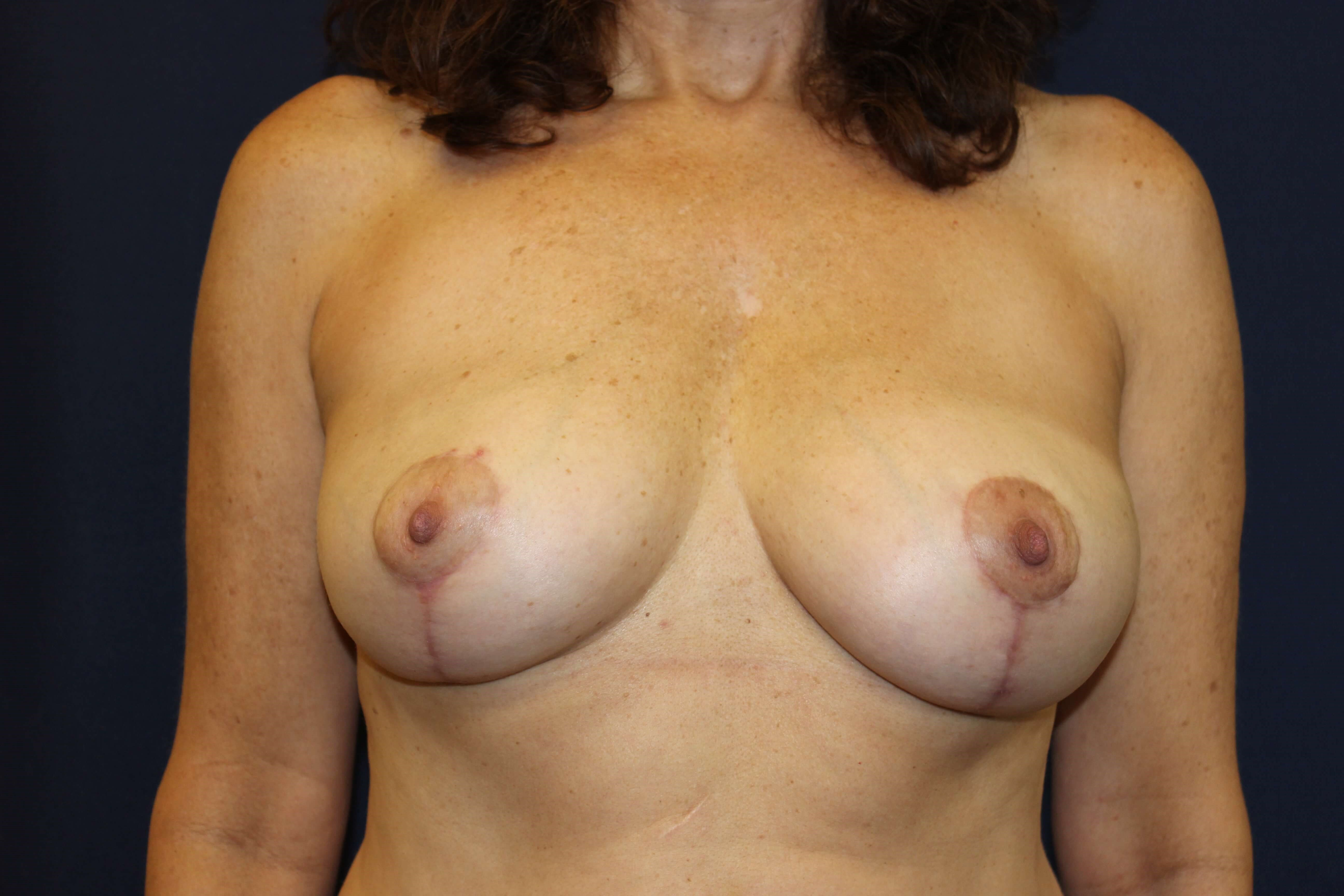 San Diego Breast Reduction After