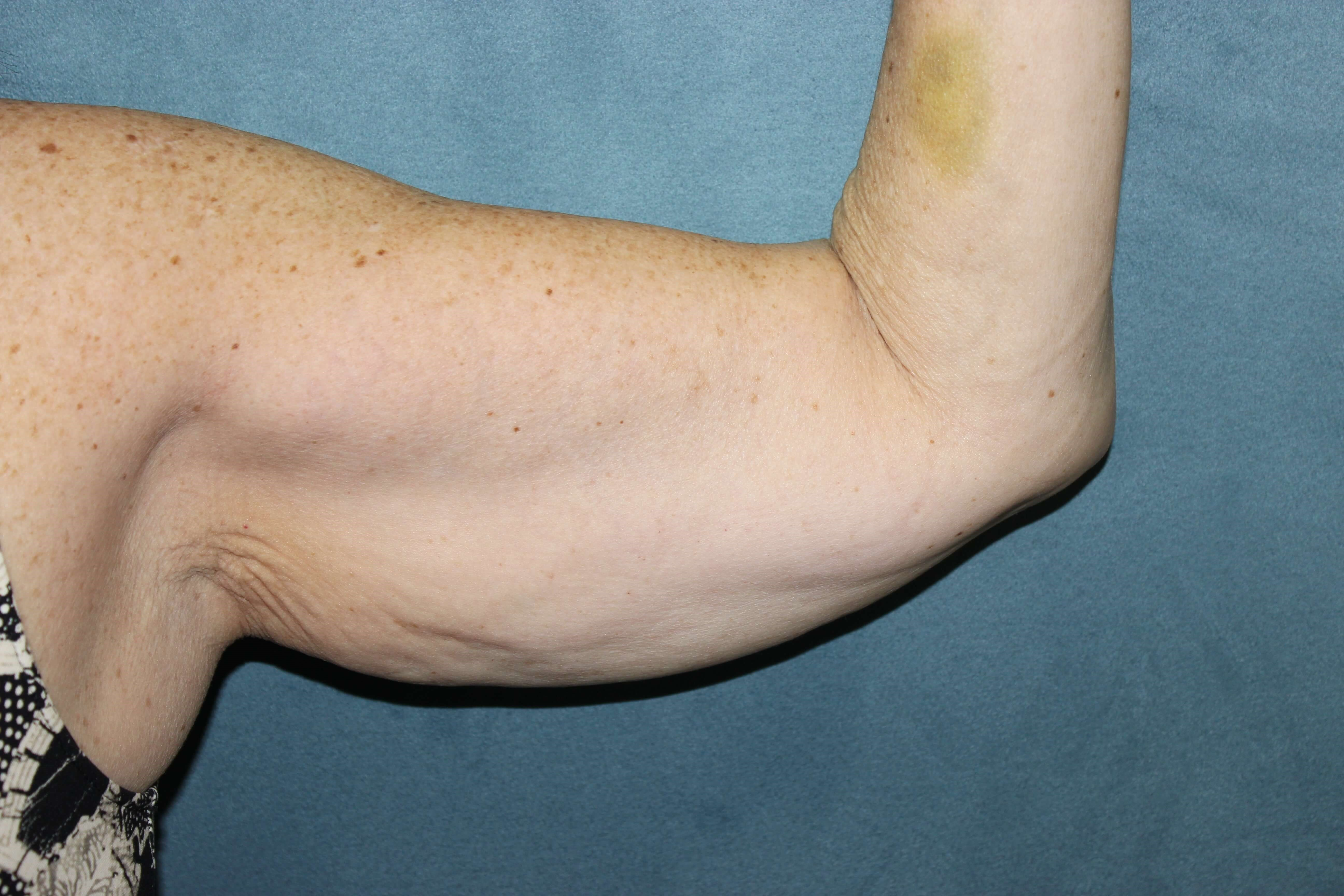 Bilateral Arm Lift Before