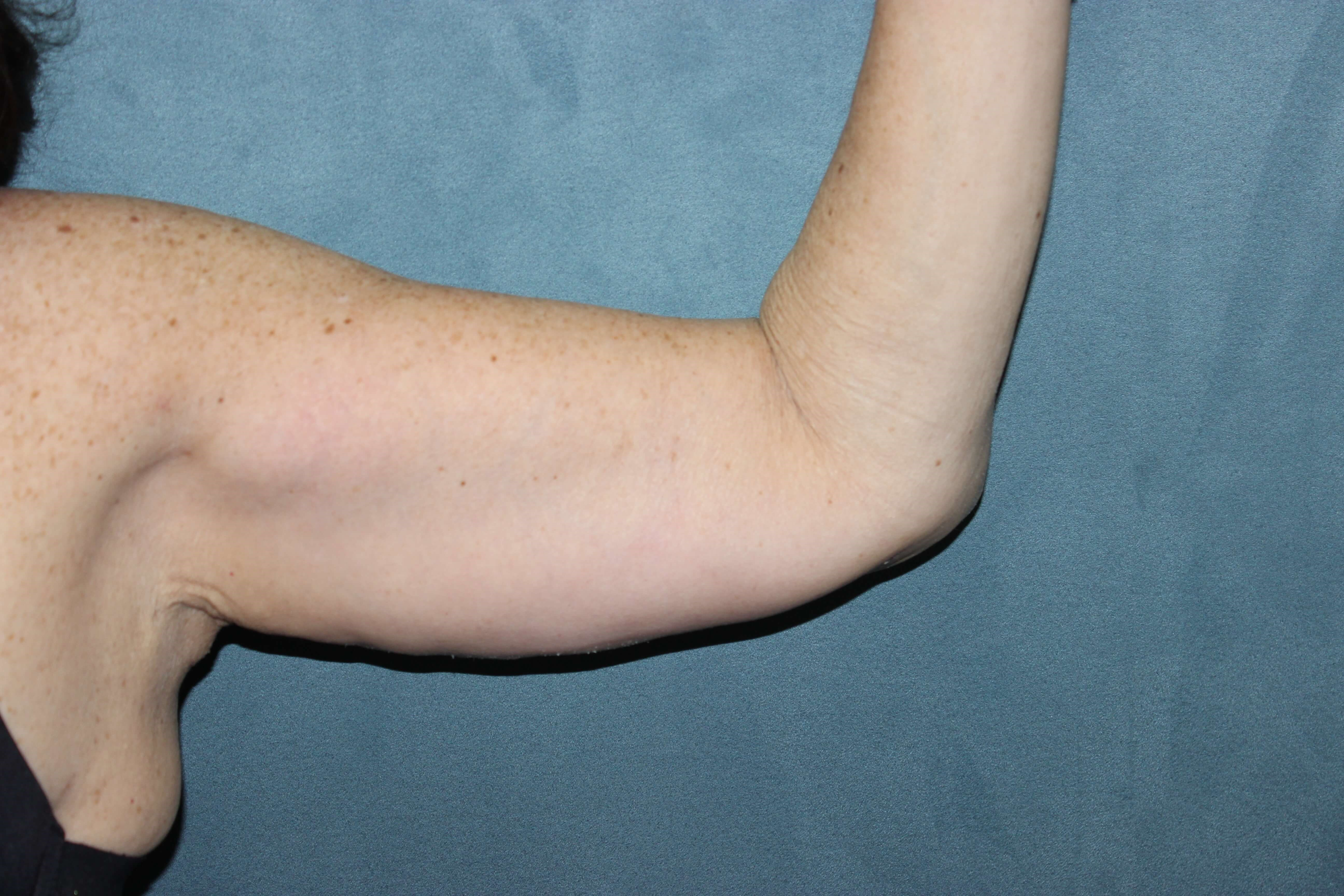 Bilateral Arm Lift After